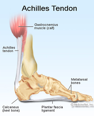 what to do for plantar fasciitis in heel
