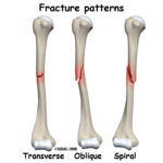 Different Type of Fractures