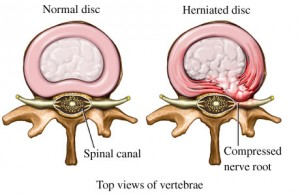 Herniated Disc in Top VIew