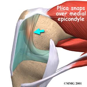 Knee Synovial Plica