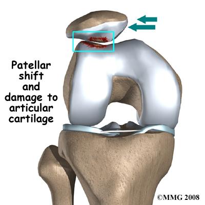 Knee Chondromalacia
