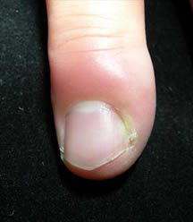 Fingertip Infection