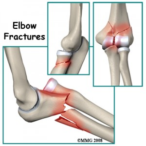 Elbow Fracture