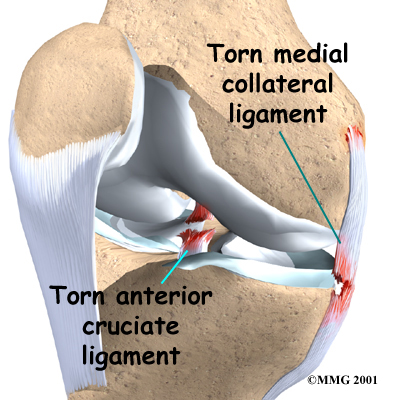 Medial Collateral Sprain