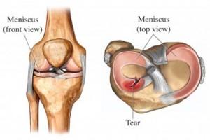 Knee Meniscus Tear