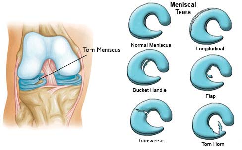 Types of Meniscus Tear
