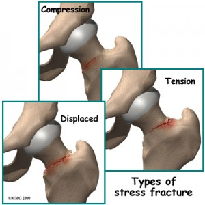 types of hip stress fracture