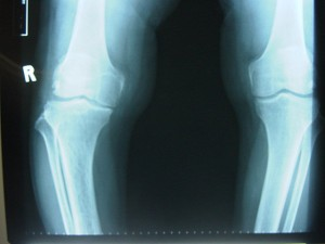 X-ray OA Knee