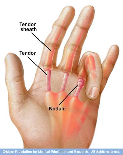 Hand    Finger Tendinitis